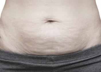 Por qué se produce la flacidez, cómo prevenirla y cómo tratarla?