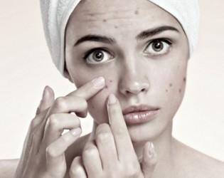 Que es el acné?? cómo tratarlo y controlarlo?? y cómo mejorar sus secuelas?